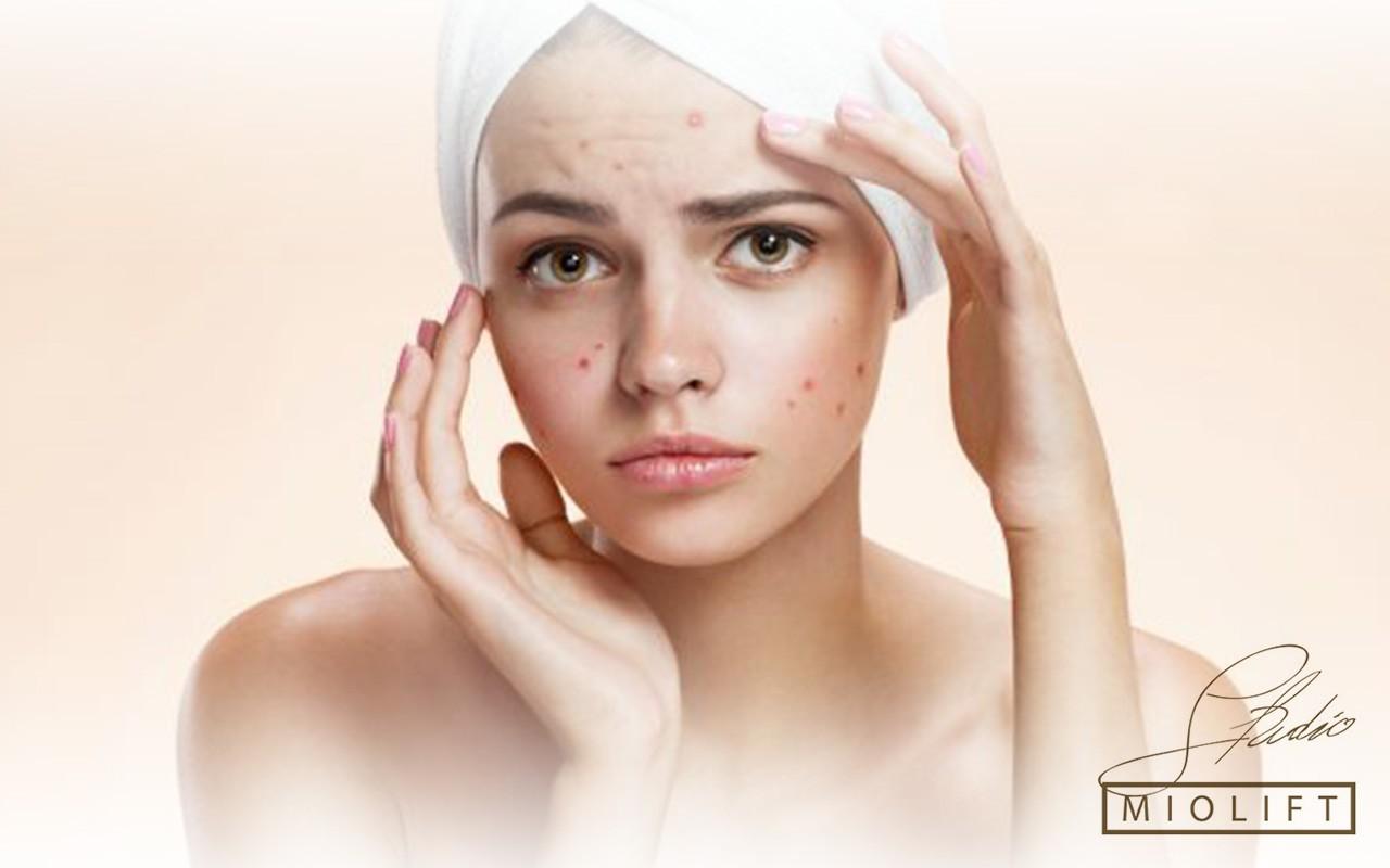karboksi tretman, tretmani lica