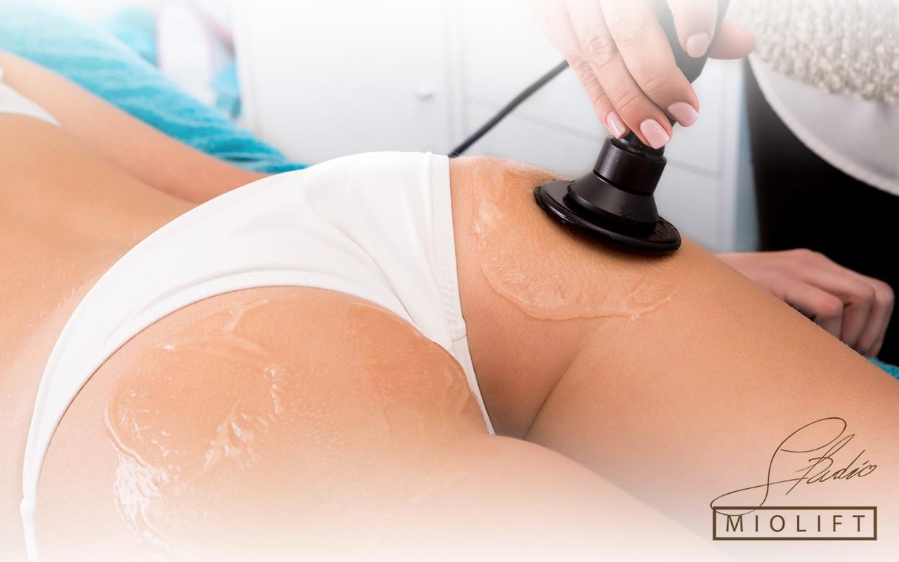radiotalasi, tretmani tela, anti-aging