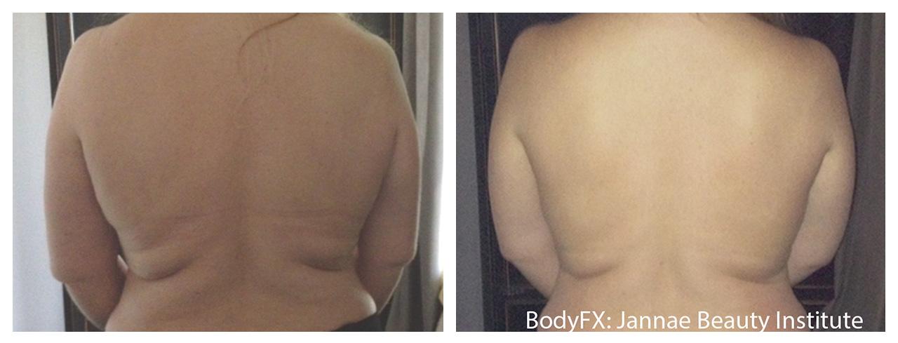 bodyfx pre posle 6 BodyFX by InMode | NOVO