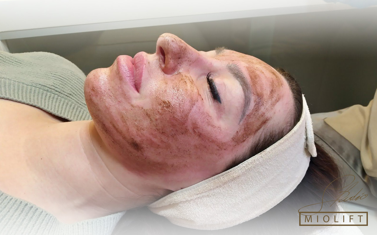Fitopiling tretmani lica